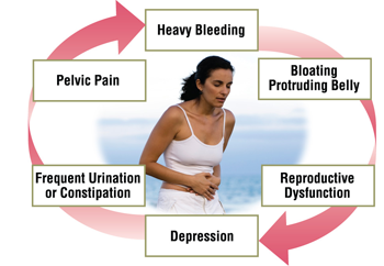 6 Most Common Symptoms and Treatments of Fibroids