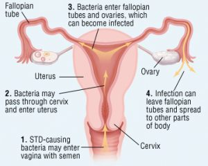 Discover How Pelvic Infections Is Responsible for Infertility!