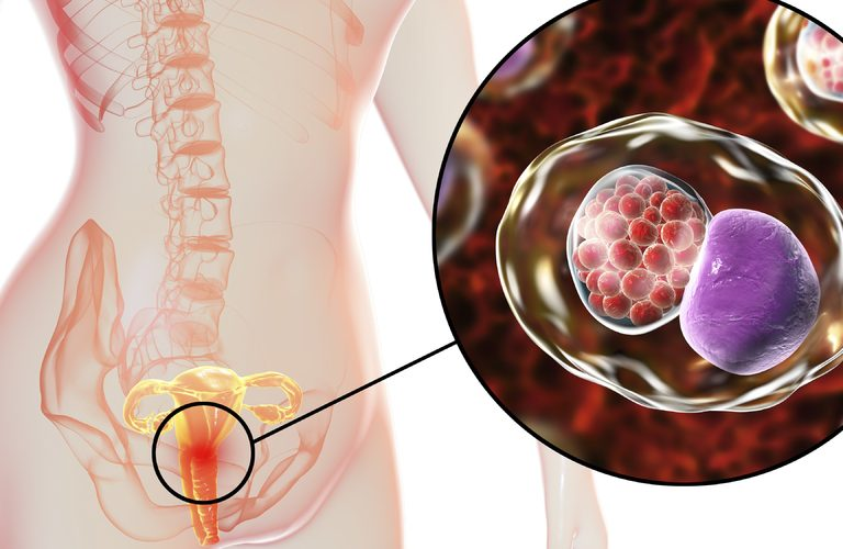 How Pelvic Infections Cause Infertility and The Way To Get It Treated Effectively